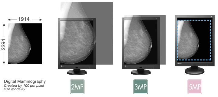 Eizo Radiforce GX540 5MP Mammography