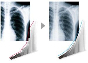 Eizo Radiforce RX250 Diagnostic Monitor Precision Graph