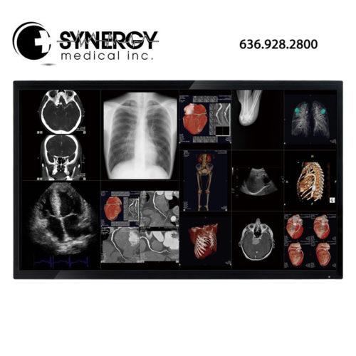 Optik View 58in DC5811 4K Surgical Display