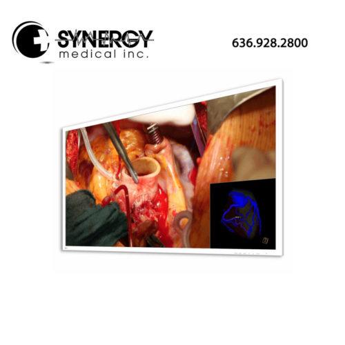 Eizo CuratOR EX5841 58in 4K UHD Widescreen Surgical Monitor